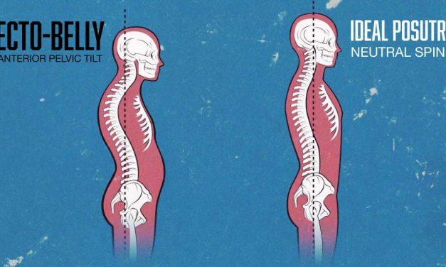 Best Article On How To Fix Anterior Pelvic Tilt